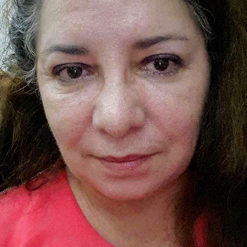 Dra. Dina Espinosa Brilla
